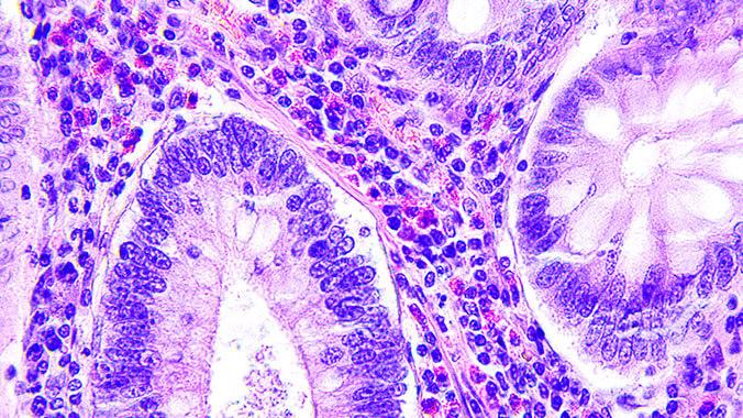 Bio Tissue Analysis